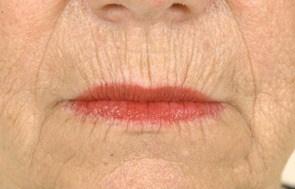 Lines around lips