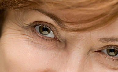 Lines around eyes